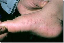 phototake_hand-foot-mouth_disease_foot_rash